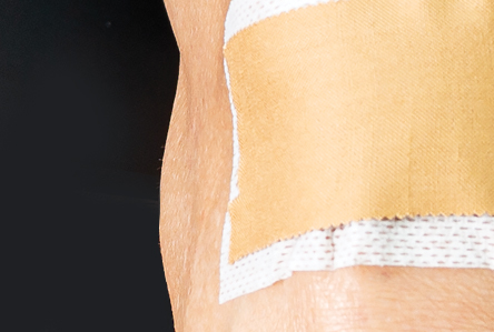 BodySport Rigid Strapping Tape  - close up on knee