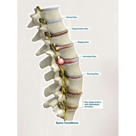 Spine Conditions Chart & More at MeyerDC™