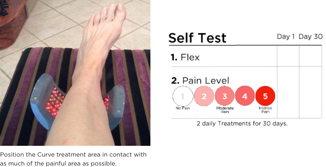 Willow Curve treatment of the ankle, foot, and or achilles