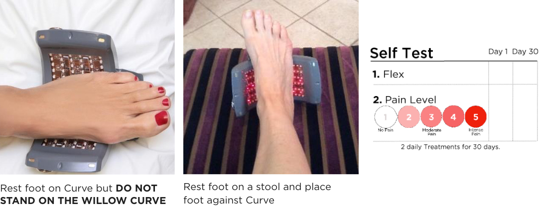 Willow Curve treatment of plantar fasciitis